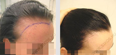 hajbeültetés nőknek
