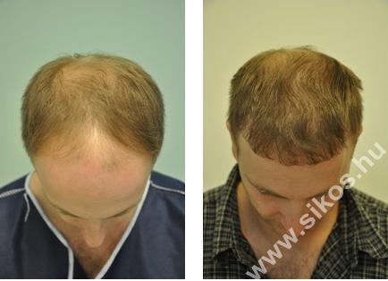 Hajbeültetés-hajátültetés 2827 grafttal