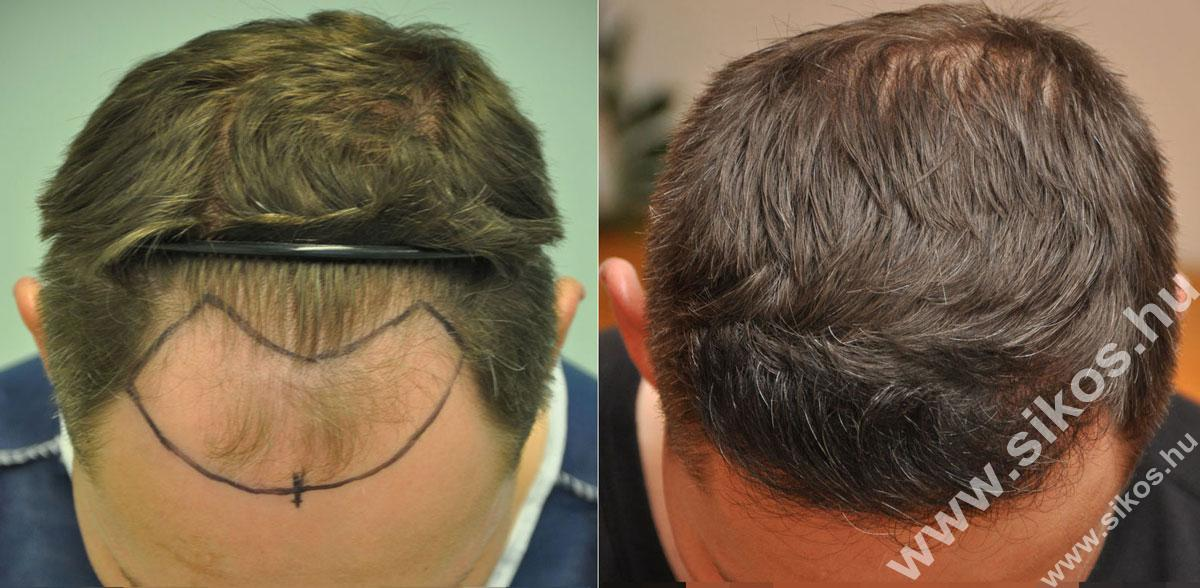 FUE hajátültetés 2171 grafttal