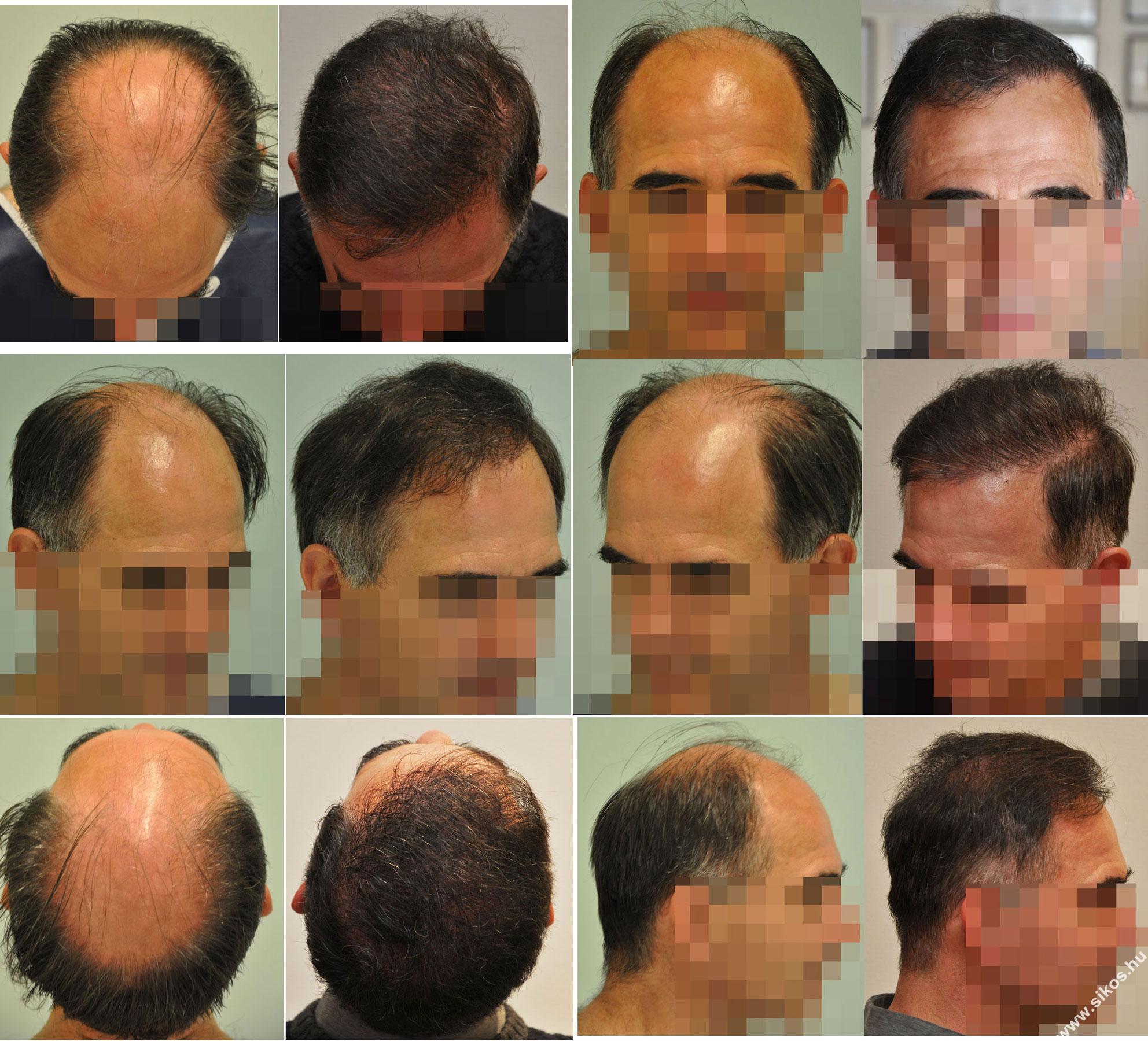 FUE hajbeültetés előtt és után
