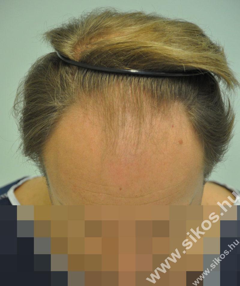 Hajátültetés, hajbeültetés előtt
